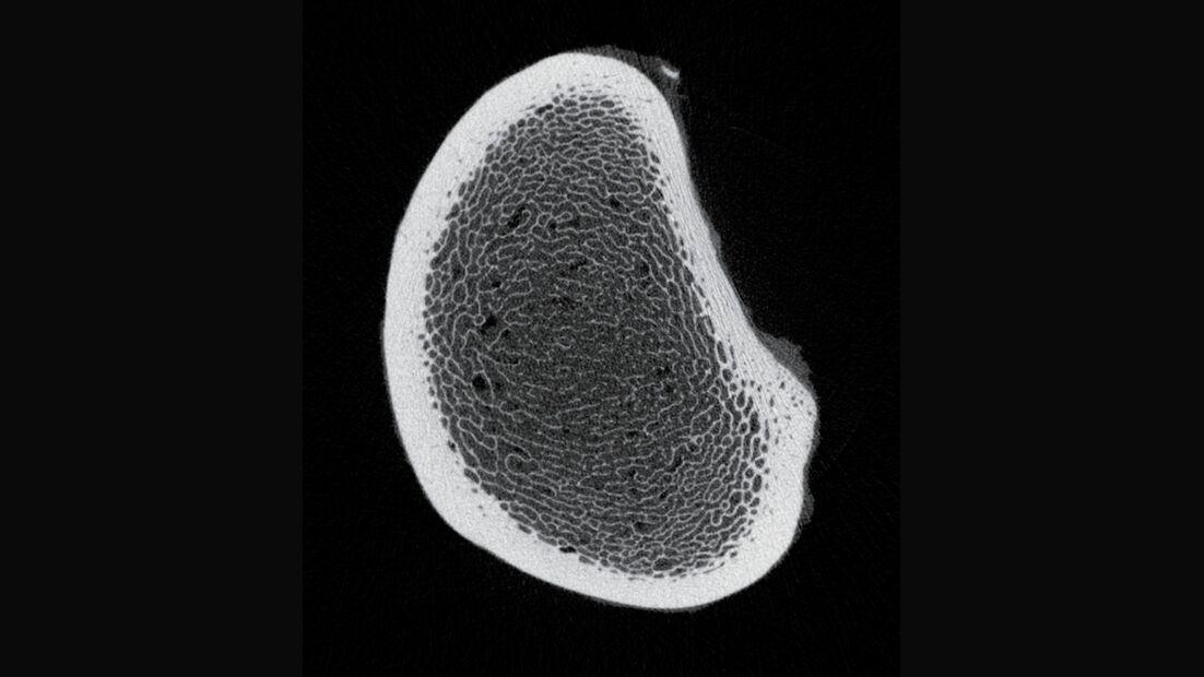 CAV 0708 Osteoporose - Röntgenbild 1
