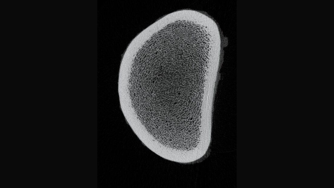 CAV 0708 Osteoporose - Röntgenbild 2