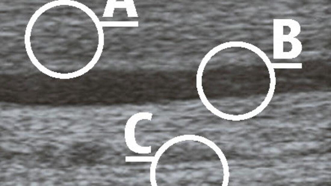 CAV_12_2010 Ultraschall Sonographie_01 (jpg)
