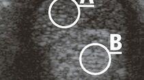 CAV_12_2010 Ultraschall Sonographie_02 (jpg)