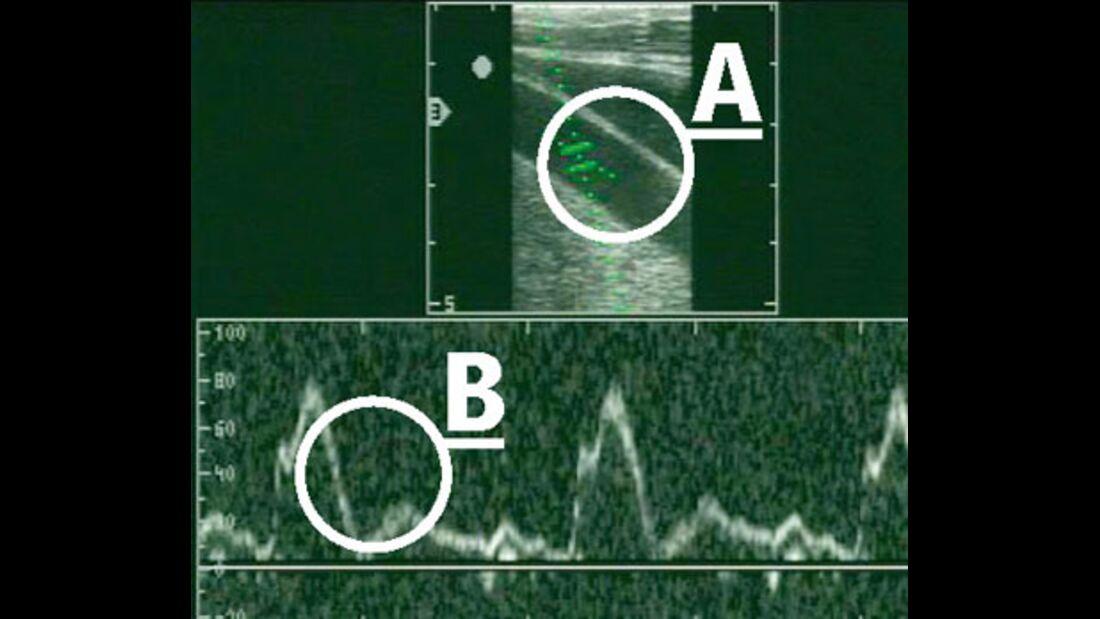 CAV_12_2010 Ultraschall Sonographie_04 (jpg)
