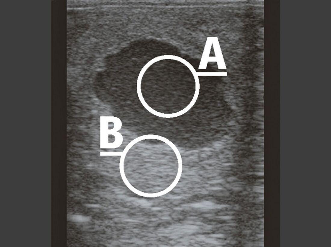 CAV_12_2010 Ultraschall Sonographie_05 (jpg)