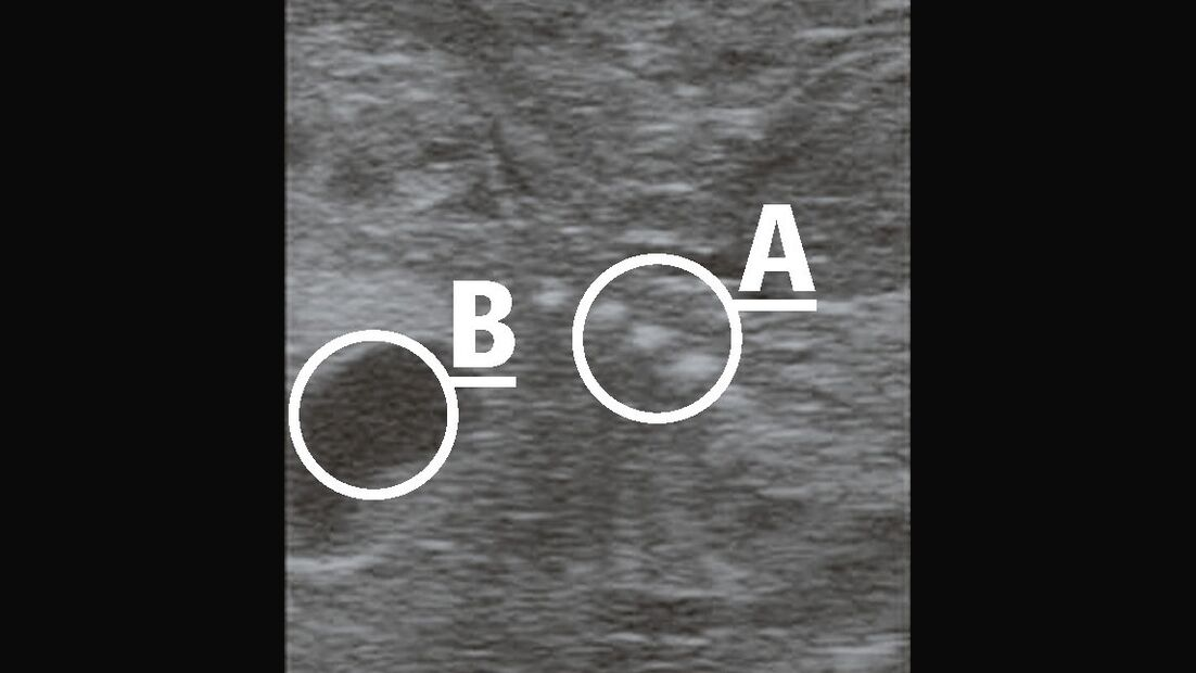 CAV_12_2010 Ultraschall Sonographie_06 (jpg)